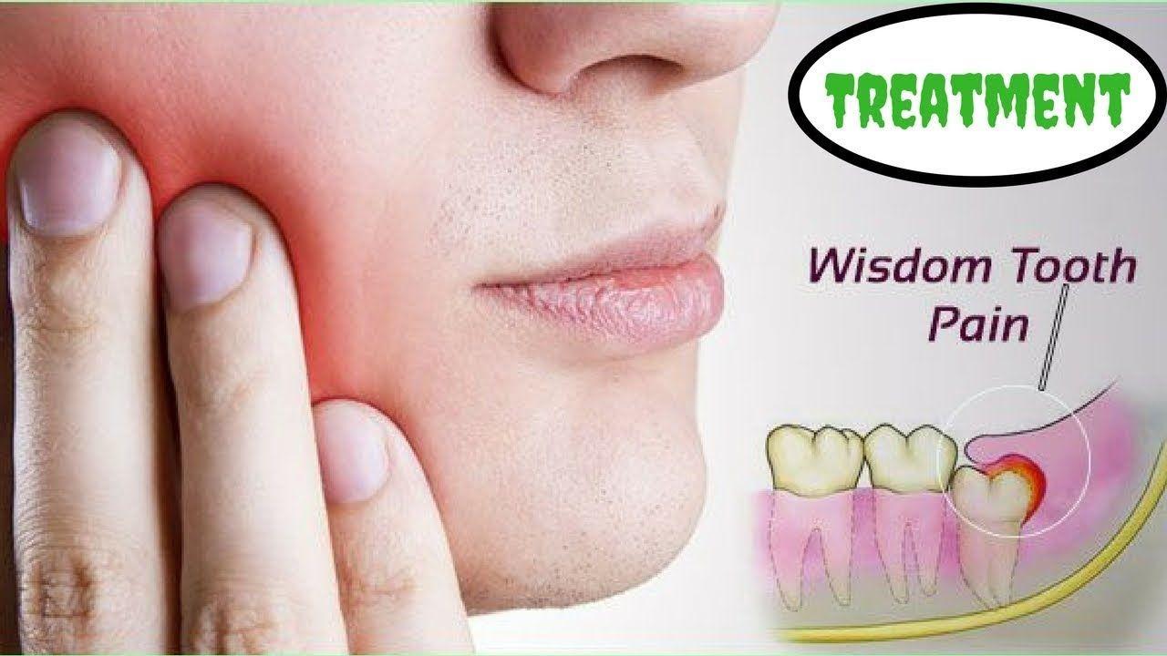 Pin On Teeth Whitening Tips