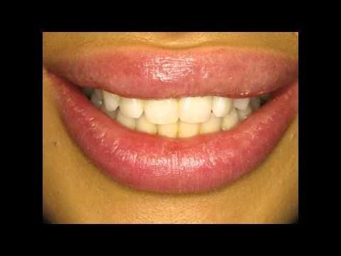 Dental veneers to add the missing spark to smile