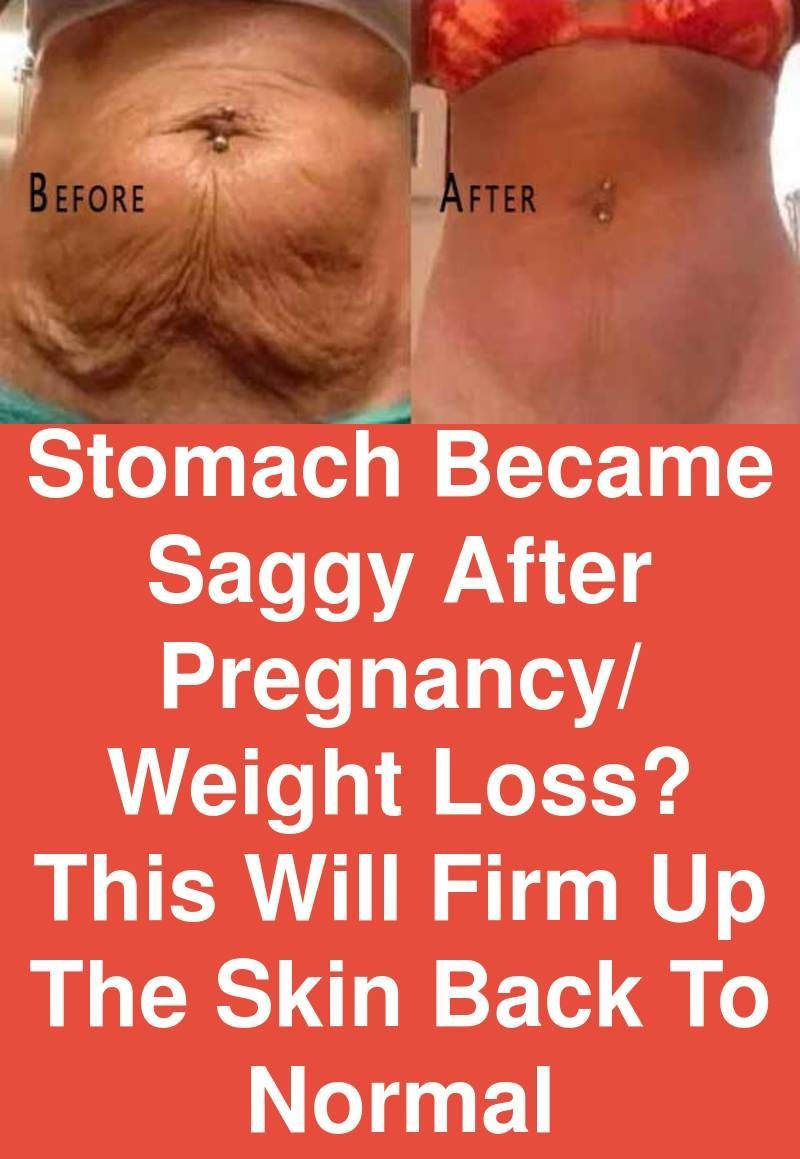 Stomach became saggy after pregnancy/ weight loss? This will firm up the skin back to normal -   17 fitness pregnancy weightloss