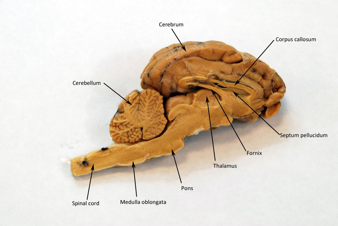 Sheep Brain - HUMAN ANATOMY WEB SITE | quiz | Pinterest | Brain