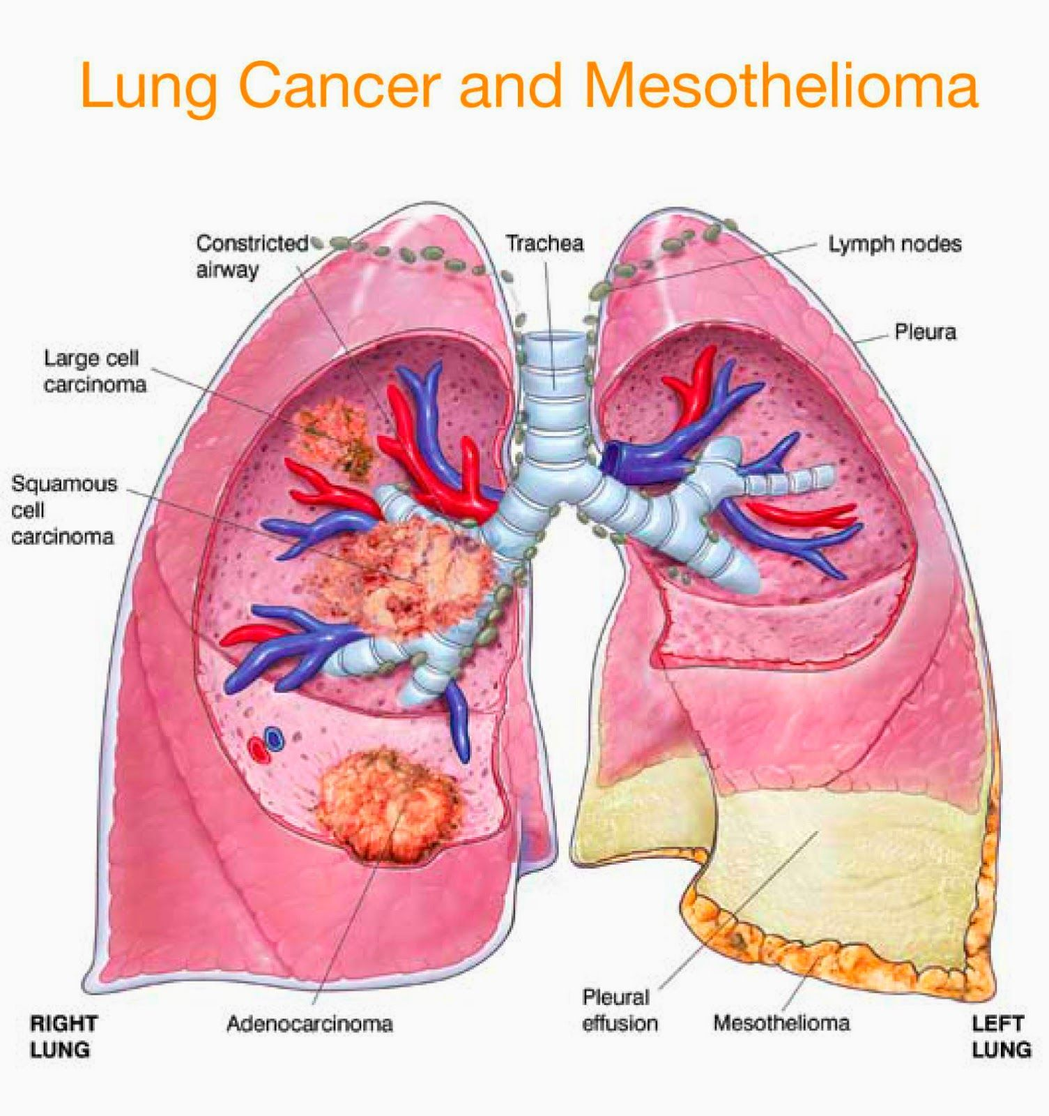 Symptoms Of Pleural Mesotheliomag 15051600 Pixels Lung
