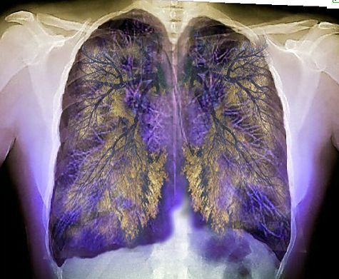These toxins are harming your lungs. Try this detox to cleanse yourself back to health.