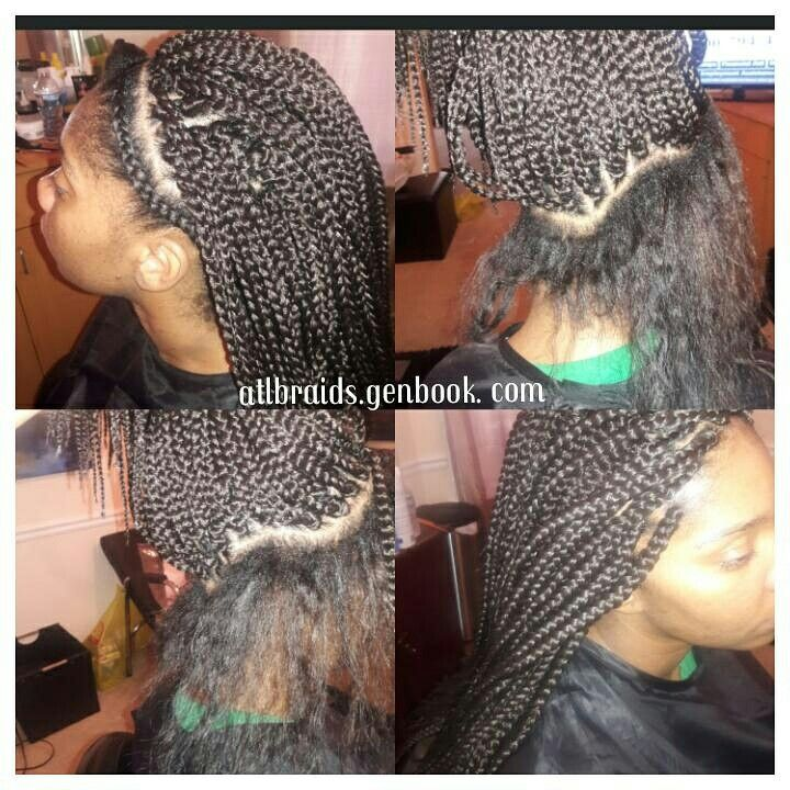 Box Braids W Singles Around The Perimeter Great For That