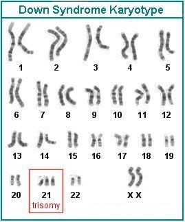 down syndrome chromosomes - Google Search | Trials  | Down
