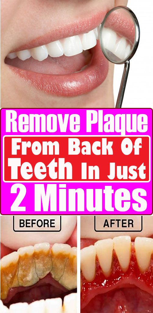 Remove Plaque From Back Of Teeth In Just 2 Minutes Healthy Teeth Oral Hygiene Teeth Health
