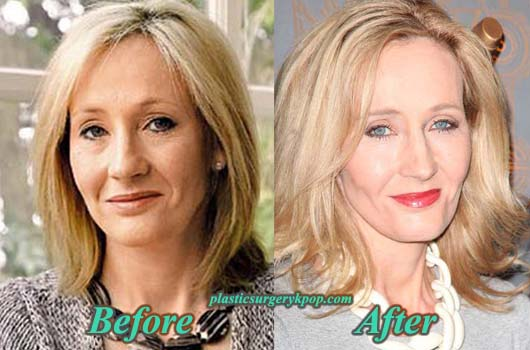JK Rowling Plastic Surgery, Before and After Botox Pictures