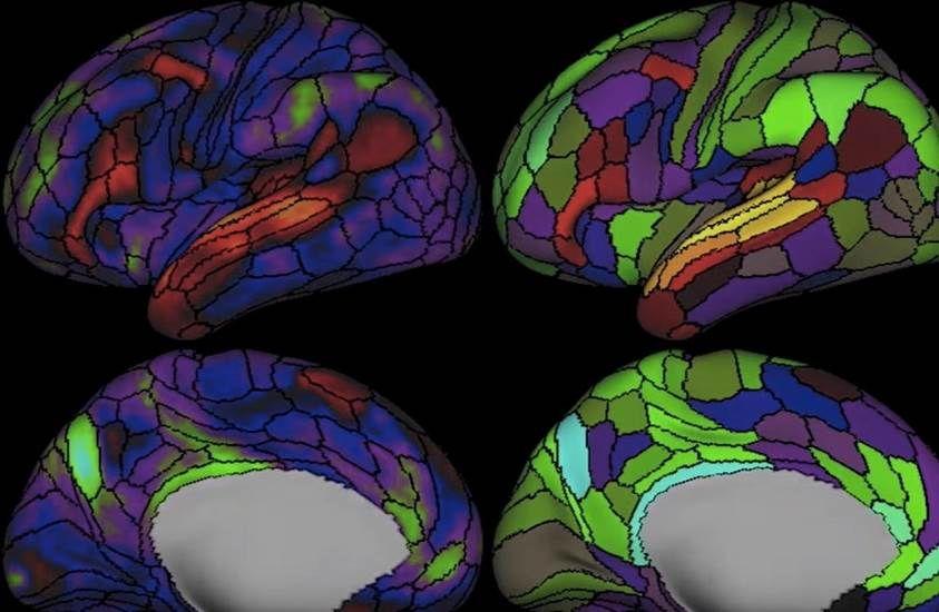 La carte du cerveau enrichie de 87 nouvelles zones