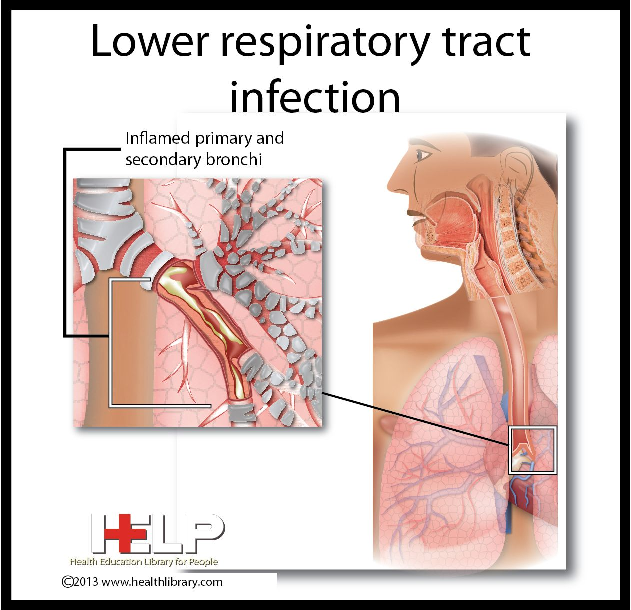 lower respiratory tract infection | respiratory system | pinterest