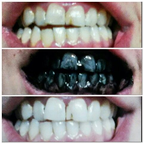 Tooth Whitening Done With Charcoal Tablets Normally Used For Gas I