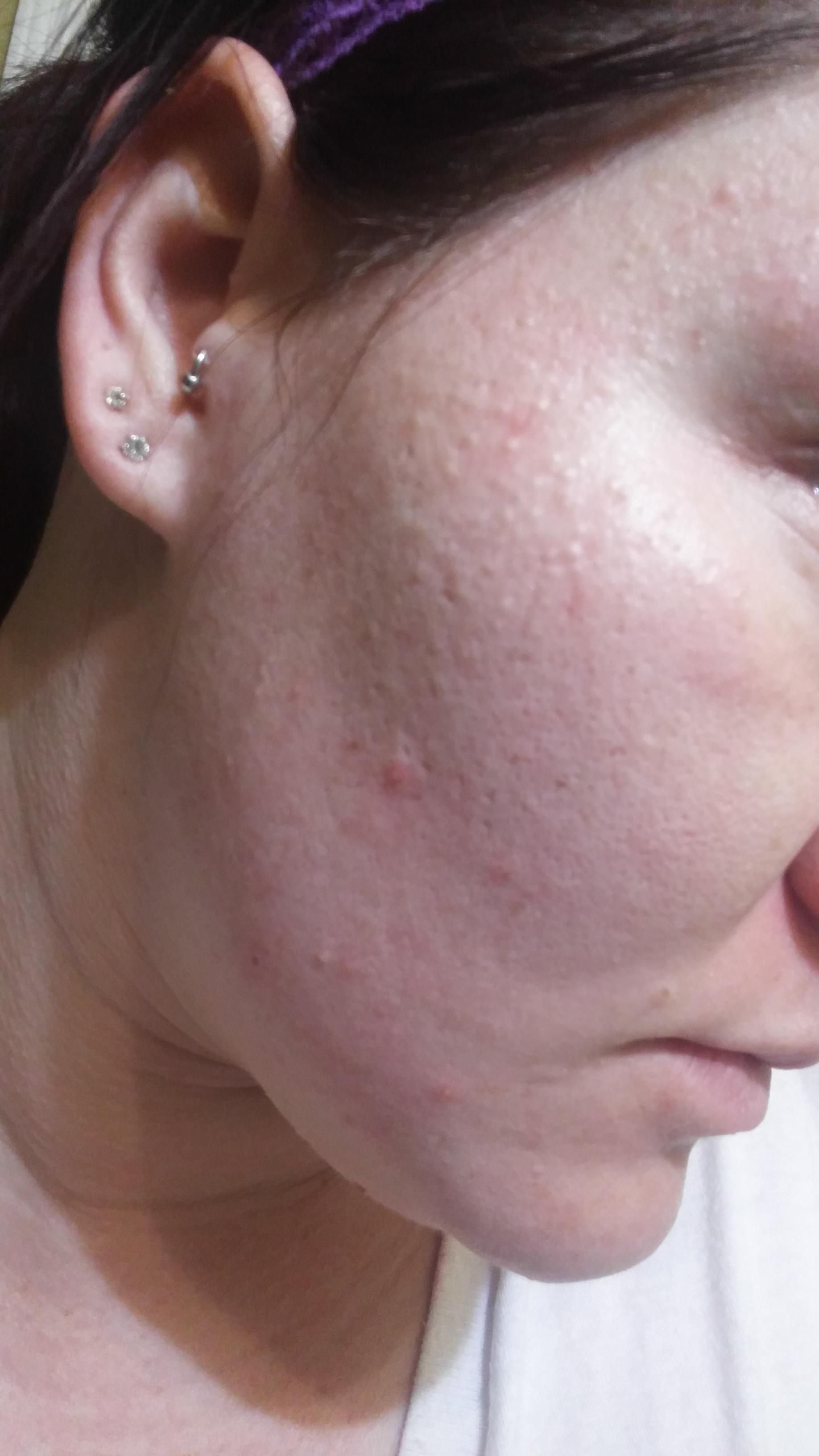 Facial white bumps under the skin picture 675
