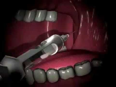 Local Anesthesia Technique - inferior alveolar nerve block | dental ...