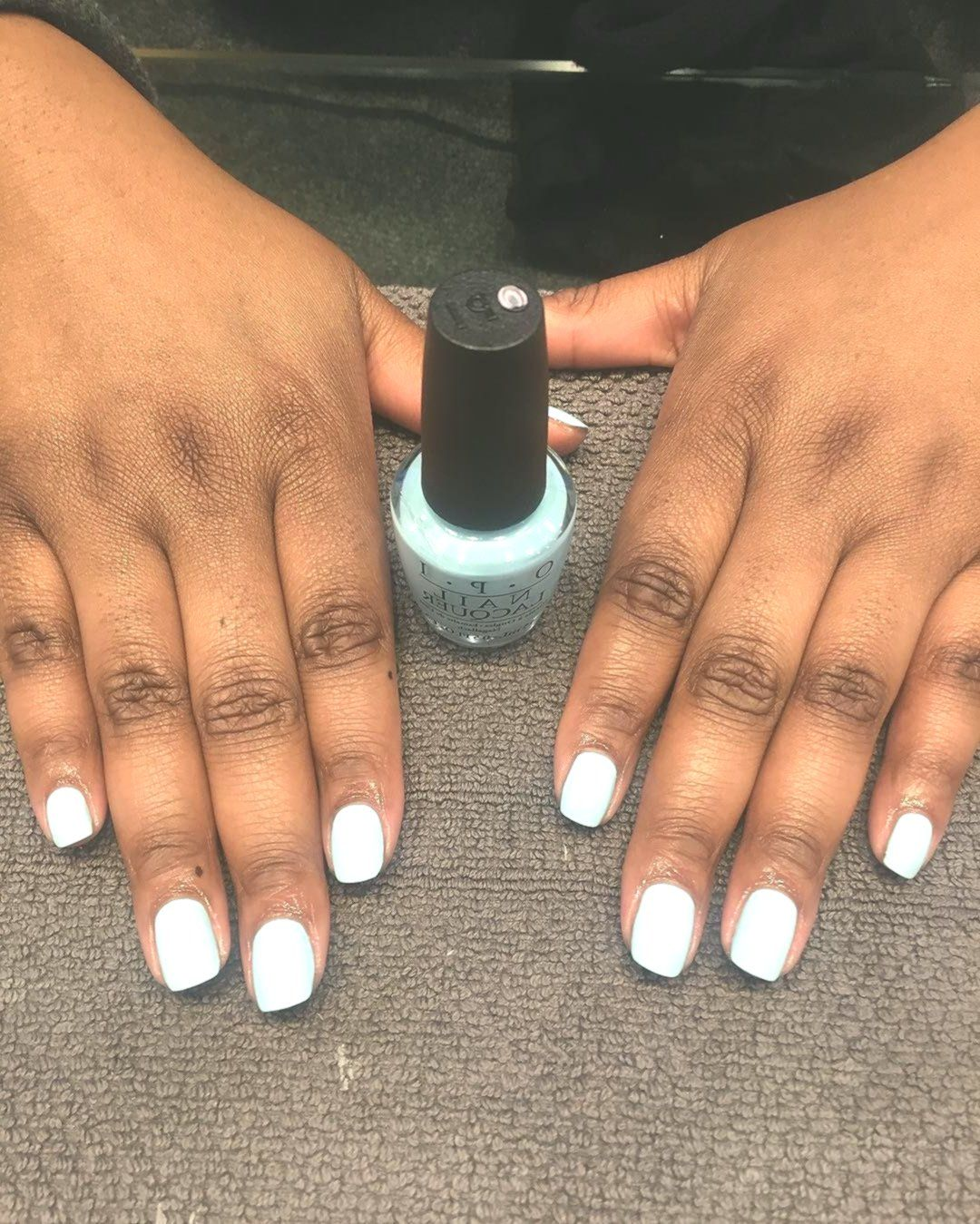 White Acrylic Nails On Dark Skin Yellow Nails Could Make Us Feel Embarrassed It Affects Both Men And Women White Acrylic Nails Blue Nail Polish Yellow Nails