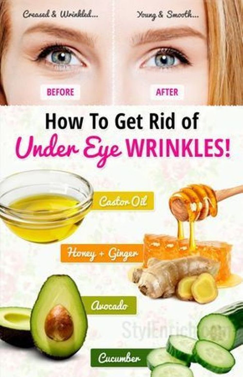 How To Remove Forehead Wrinkles Using All Natural Skin Treatments Wrinkles Under Eyes Bea Under Eye Wrinkles Eye Wrinkles Remedies Eye Wrinkle