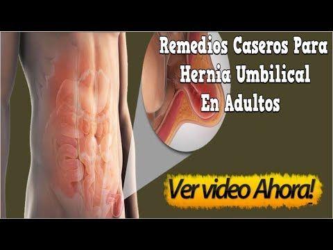 Como saber si tienes una hernia en el ombligo