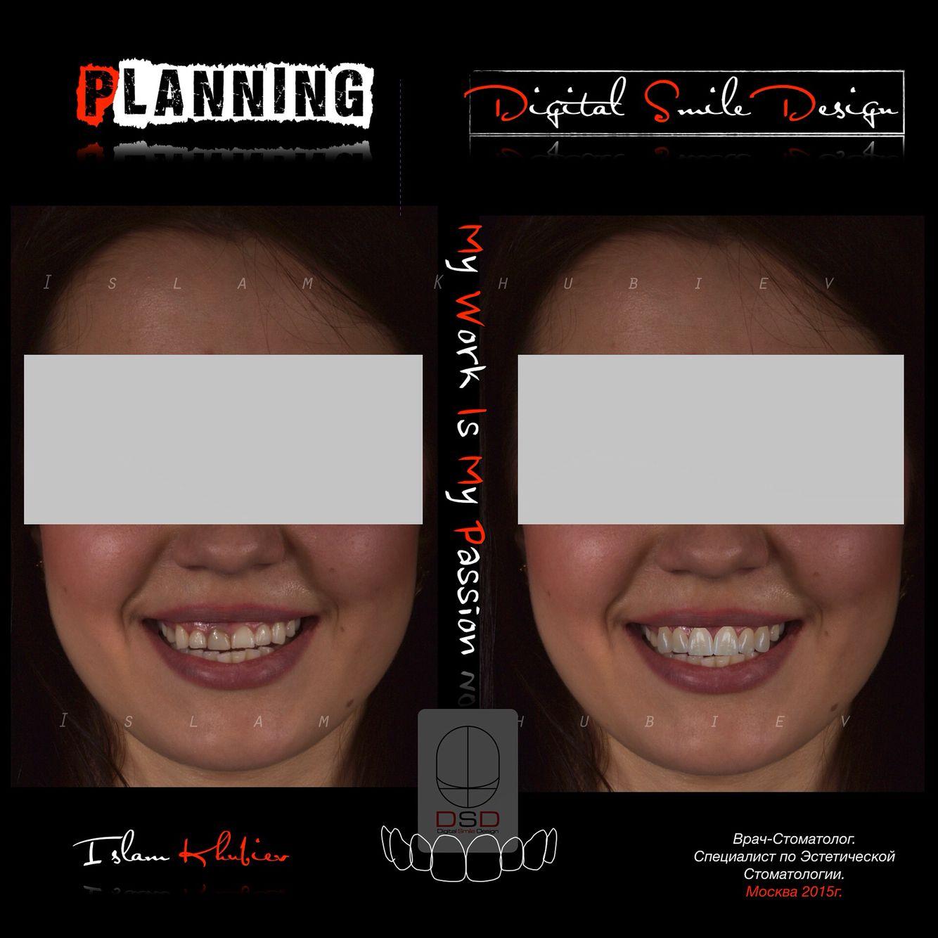 Digital Smile Design.  Planing.  Цифровой Дизайн Улыбки.  Высокотехнологичное планирование.