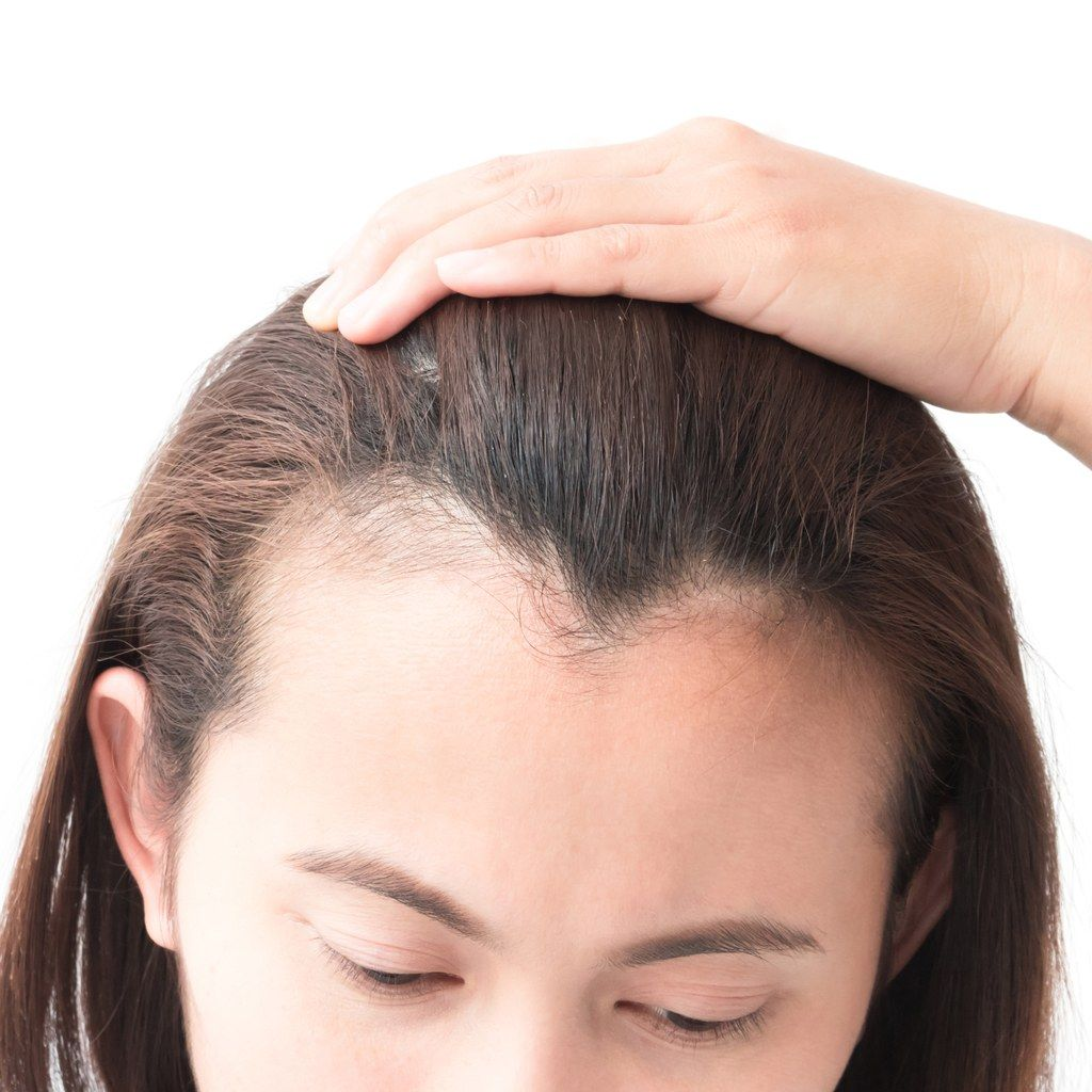 How To Regrow A Thinning Hairline Fast Thinning Hairline Regrow Hairline Haircuts For Receding Hairline