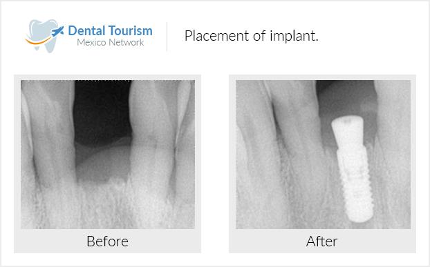 Extra-small Dental Implants Social Media #oralhealththerapist #WisdomTeethPainRelief