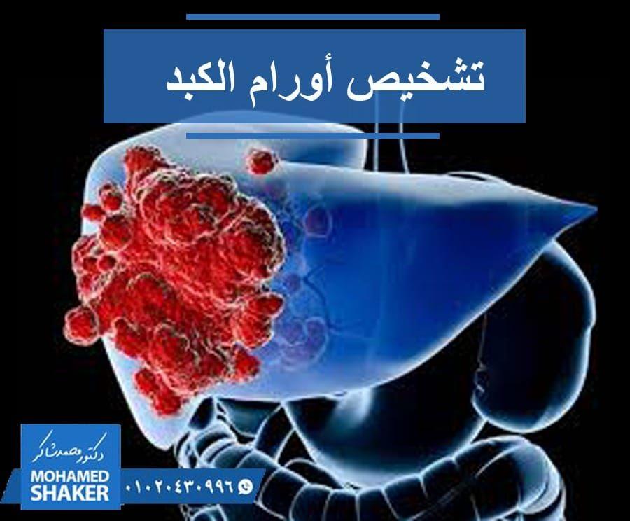 أمراض الكبد الأعراض وطرق الوقاية