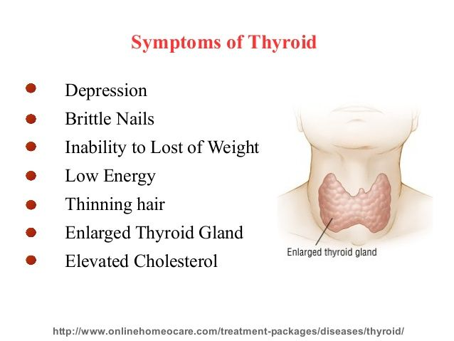 Enlarged Thyroid Goiter Symptoms You Can Get More Details By