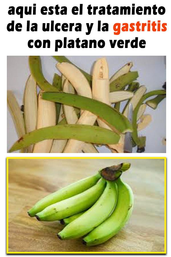 Aqui Esta El Tratamiento De La Ulcera Y La Gastritis Con Platano Verde Salud Caseros Remdios Recetas Fruit Banana Food