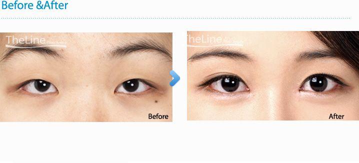 Double Eyelid Surgery    | Eyes | Eyelid surgery, Adipose