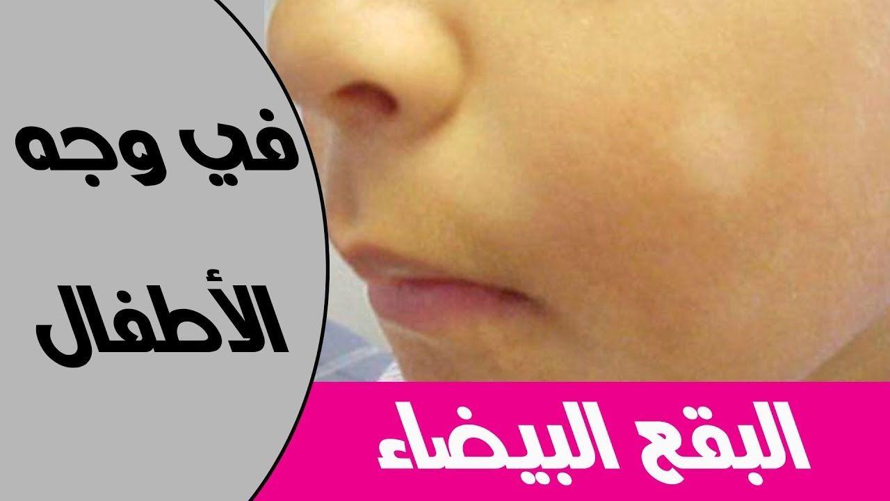 5 اسباب لظهور البقع البيضاء في الوجه عند الاطفال Baby Health Youtube Parenting