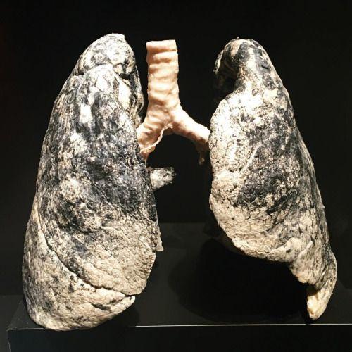 Los efectos del tabaco en los pulmones. Platinación de pulmones de ...