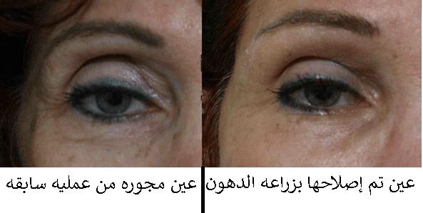 تجميل الجفون العملية و التكلفة عيادات السالم لطب و جراحة العين أ د خليل السالم Eye Doctor Doctor