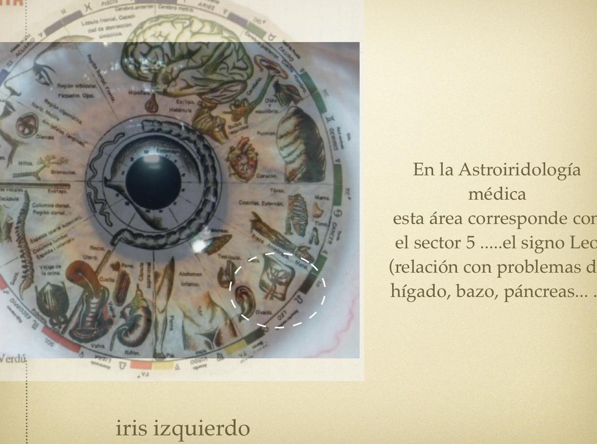 Iridología en valencia: EL BAZO Y LA IRIDOLOGÍA.