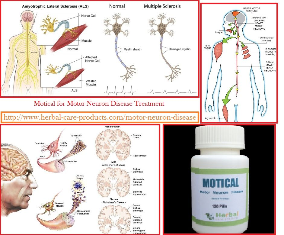 Motor Neuron Disease Treatment Motor Neuron Disease