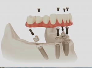 Hybrid Prosthesis Best Denture Alternative Implant Dentistry Tooth Implant Cost Teeth Implants