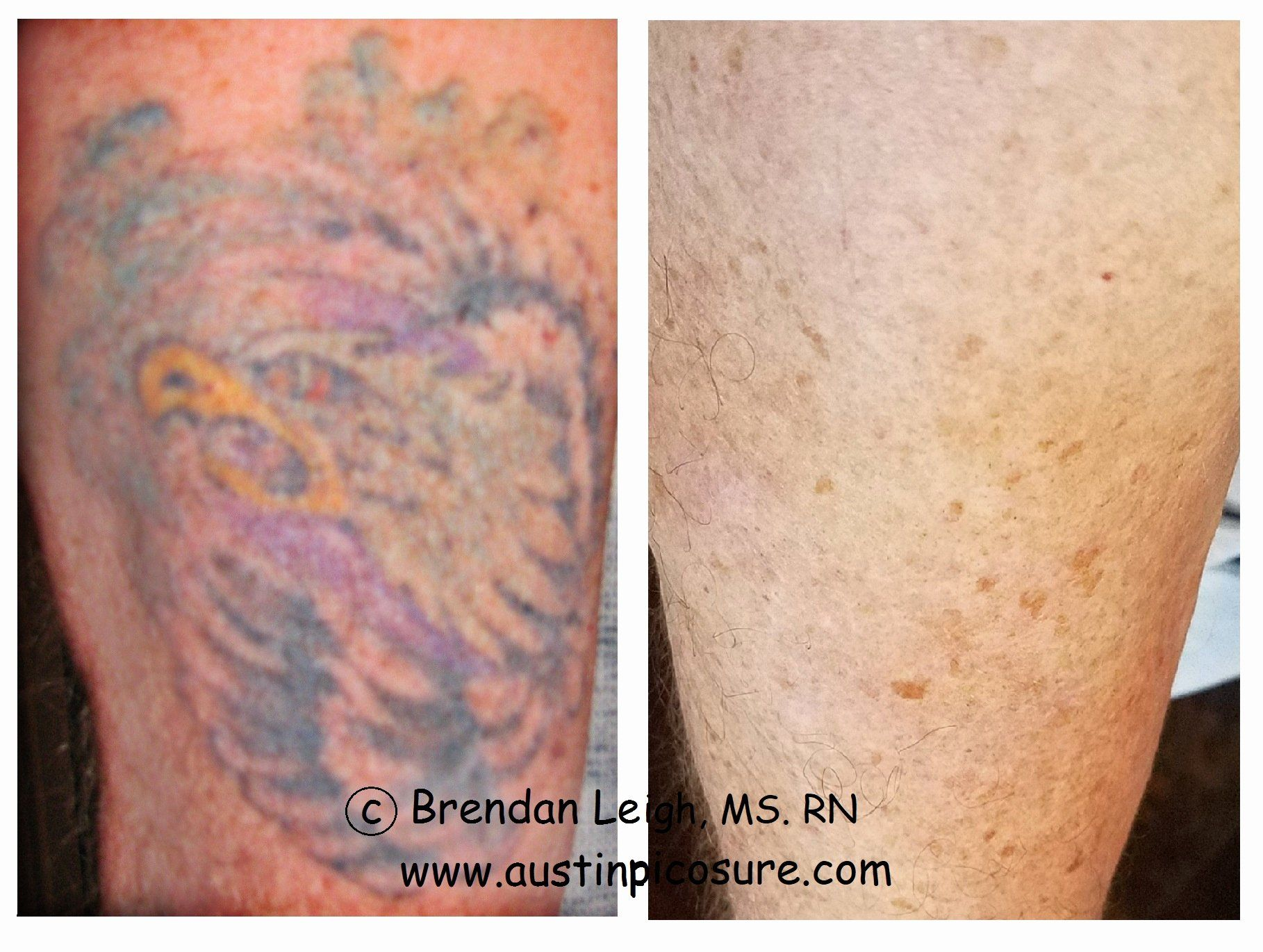 Dr Dre Tattoo Removal Beautiful Invisible Ink Tattoo Removal 100