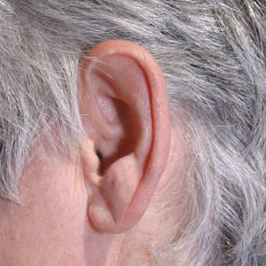 Ear crease sign of blocked arteries Not everyone with ear lobe crease have  blocked arteries