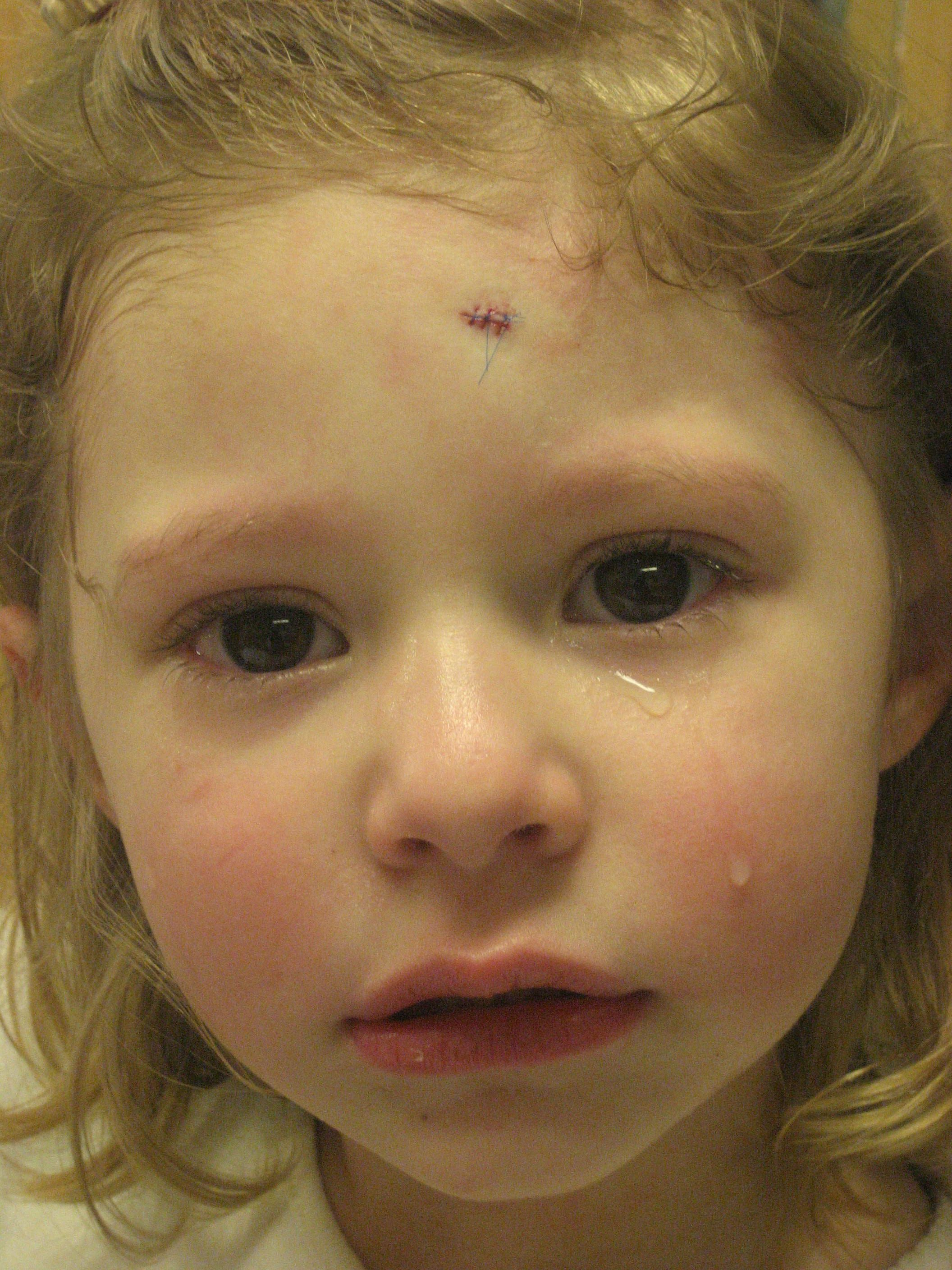 How do you know when your toddler needs stitches with
