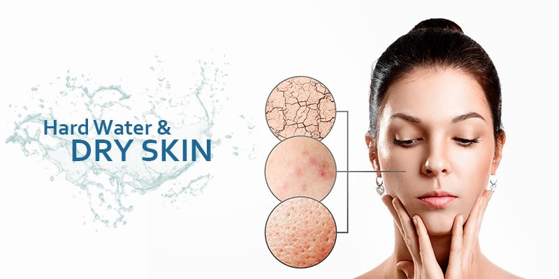 How Does Hard Water Make Your Skin Dry Hard Water Skin Dryness Skin Protection