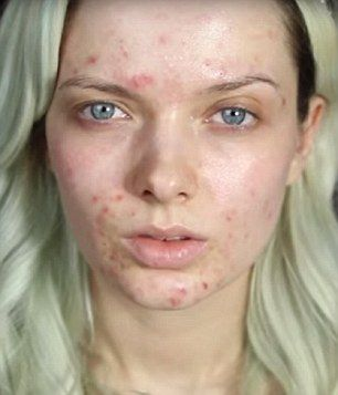 Beauty Blogger Demonstrates How To Conceal Bad Acne Like A
