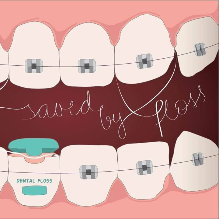 Flossing with braces can be a challenge consider a floss