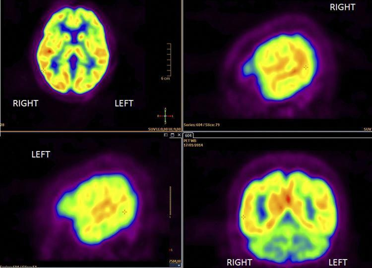 Mesothelioma Guidelines Mesothelioma Pet Scan Cancer Pet Ct