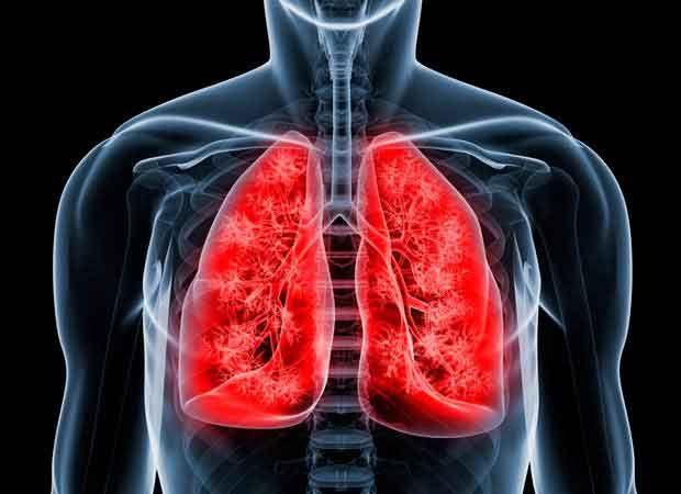 Tumores do mediastino são tipos de câncer que acometem estruturas na região entre os pulmões, como o timo. Saiba mais sobre tumores no mediastino.