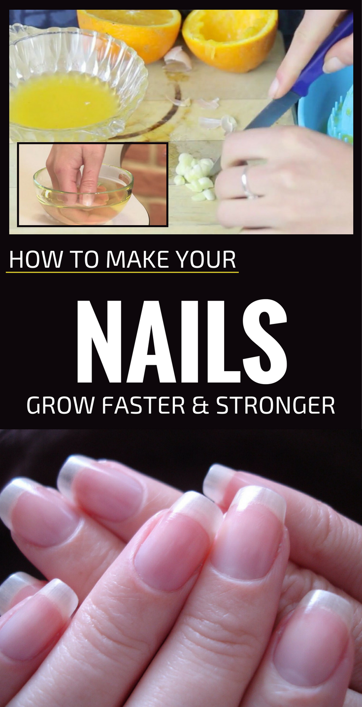 How To Make Your Nails Grow Faster And Stronger | Manicure, Natural ...