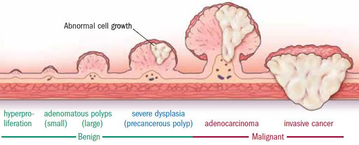 Progression of colon polyp