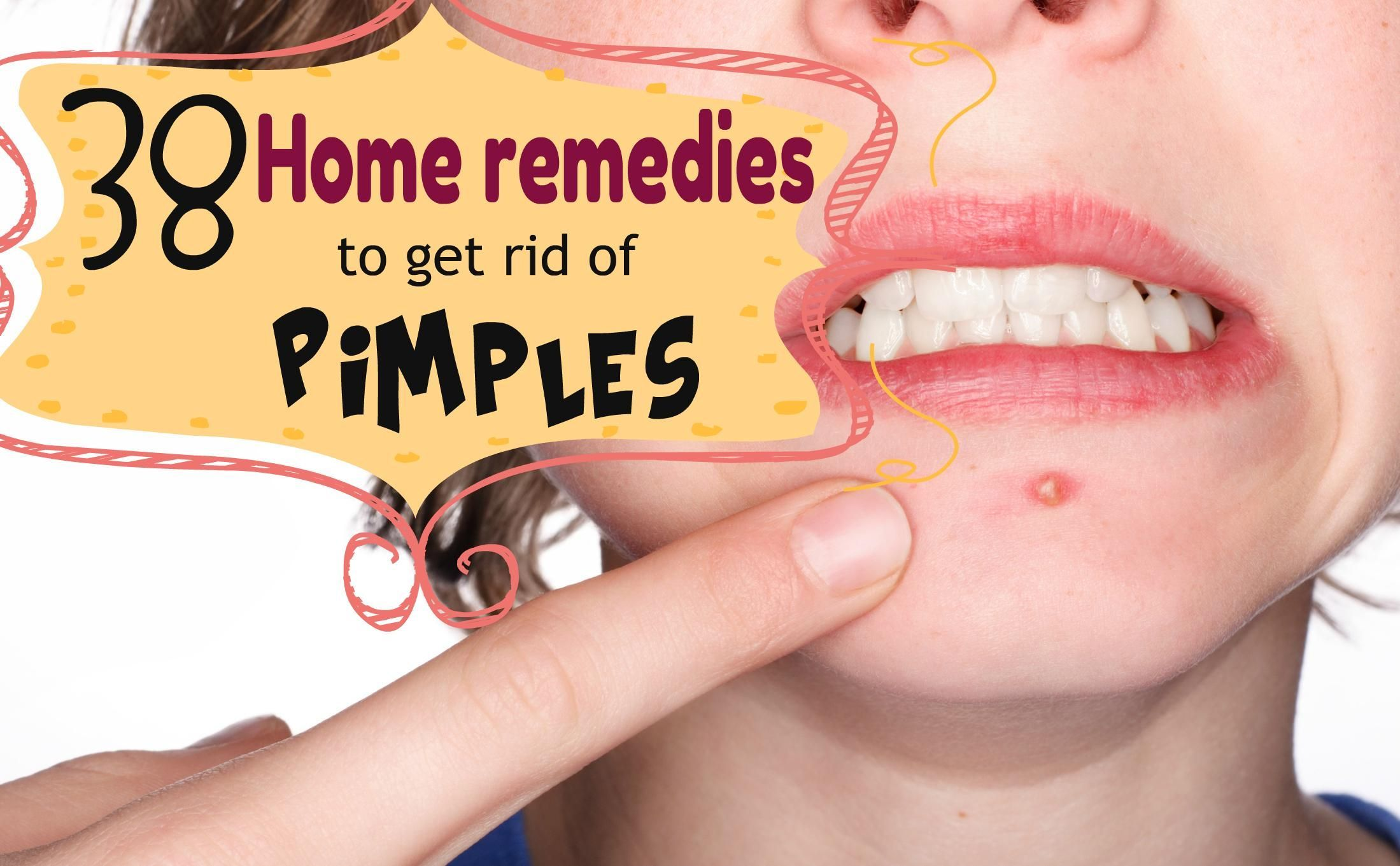 Is acne troubling you try these helpful tips rosacea