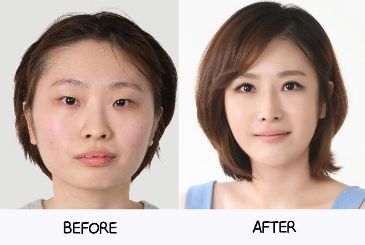 Asian round eye surgery
