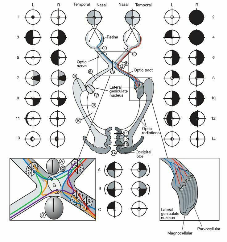 Lesiones de la vía óptica. … | Óptica | Pinte…