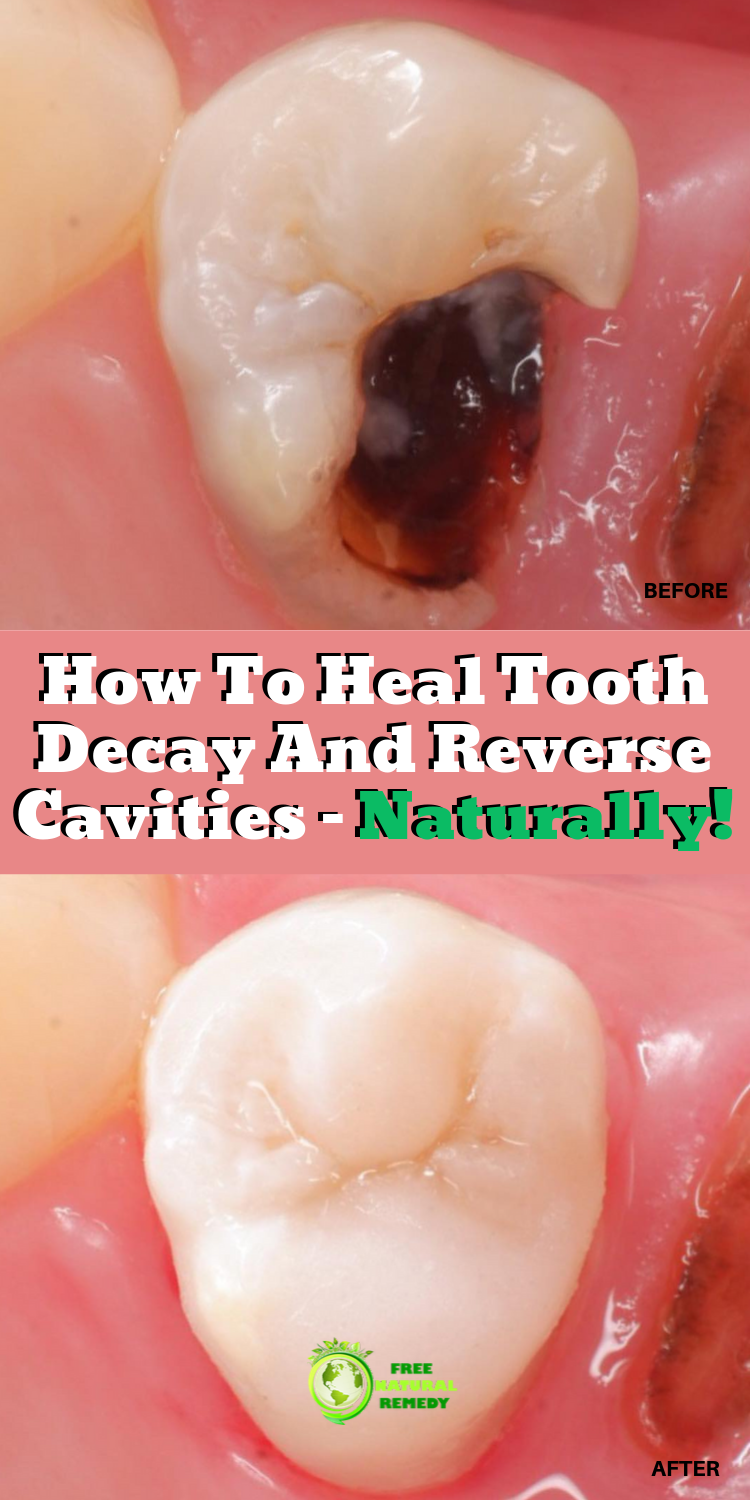 How To Heal Tooth Decay And Reverse Cavities Naturally Tooth Decay Remedies Reverse Cavities Dental Health Care