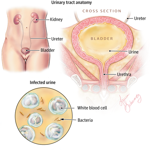 Urinary Tract Infections In Older Women Jama 2014 311 8 874 Doi 10 1001 Jama 2014 1152 Urinary Tract Urinary Tract Infection Urinary Incontinence
