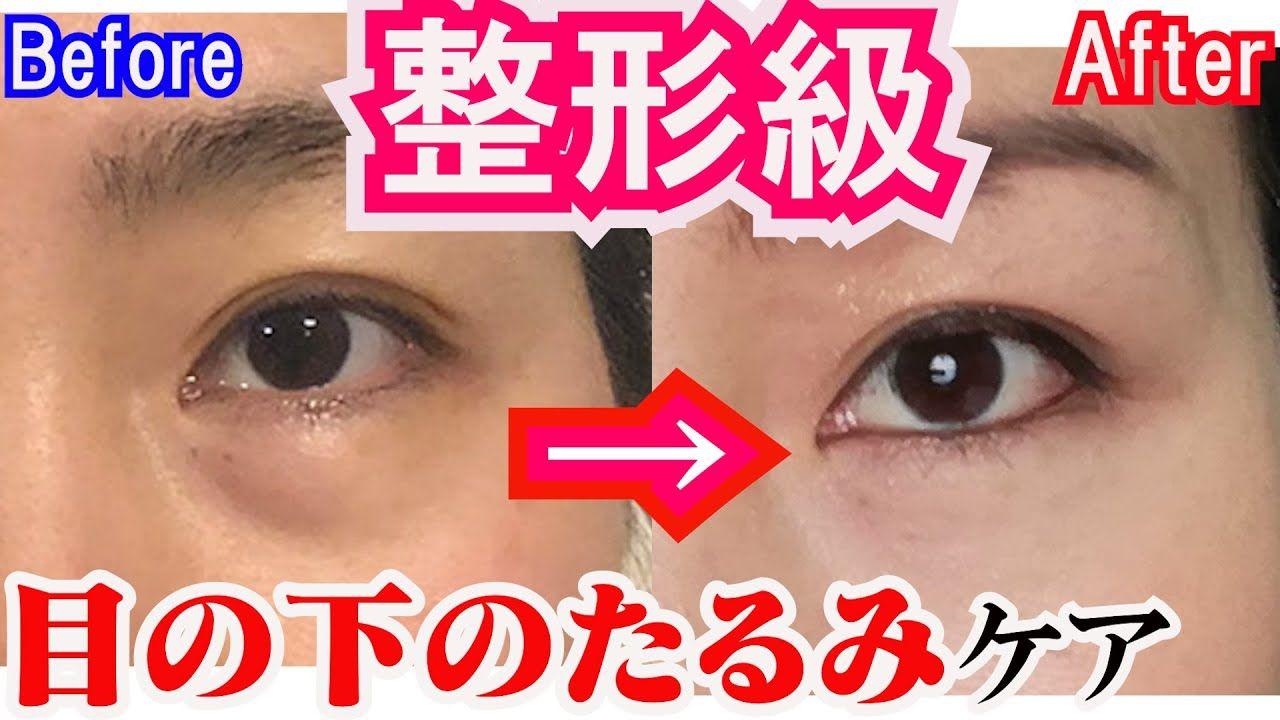 クリーム が 消える 目の下 の たるみ