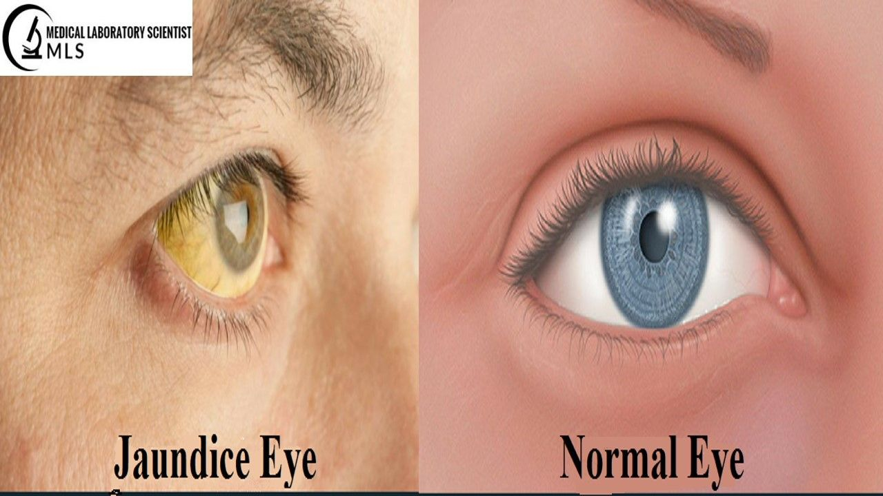 Unnatural Abnormal Yellow Discoloration Of The Skin Mucous Membranes Associated Increase Level Of Bili Causes Of Jaundice Internal Bleeding Medical Laboratory