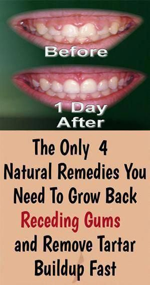 The Only 4 Natural Remedies You Need To Grow Back Receding Gums and Remove Tartar Buildup Fast!