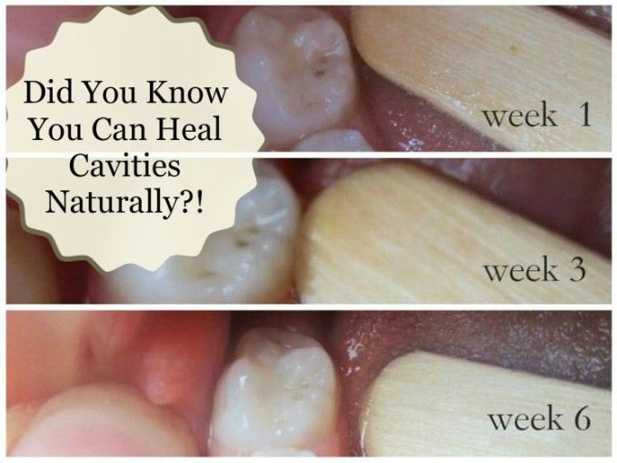 Did You Know You Can Heal Cavities Naturally?!